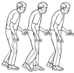 Sintomas do mal de Parkinson